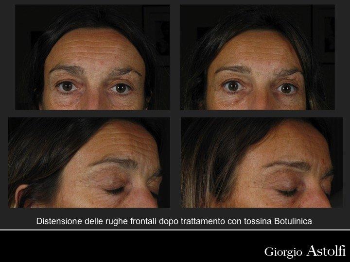 KTP Laser Treatment