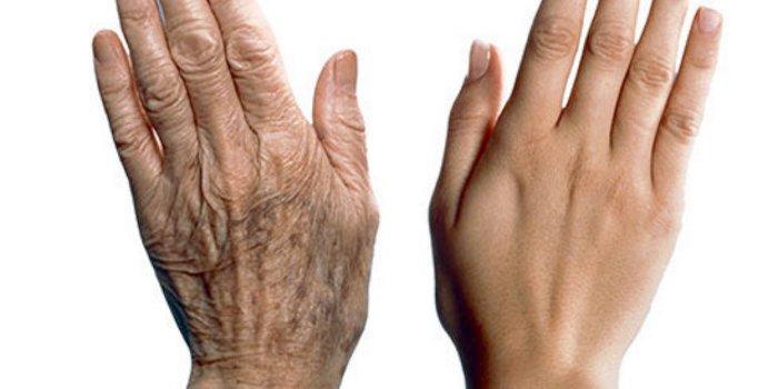 Mani: mantenerle giovani e in forma